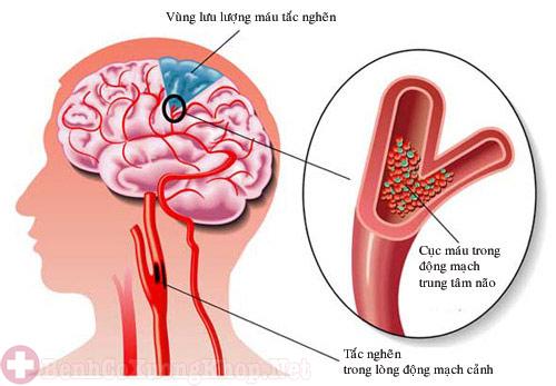 Rối loạn chuyển hóa khiến người bệnh bị tê bì chân tay
