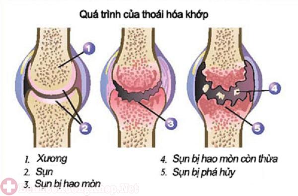 Thoái hóa xương khớp gây bệnh viêm khớp