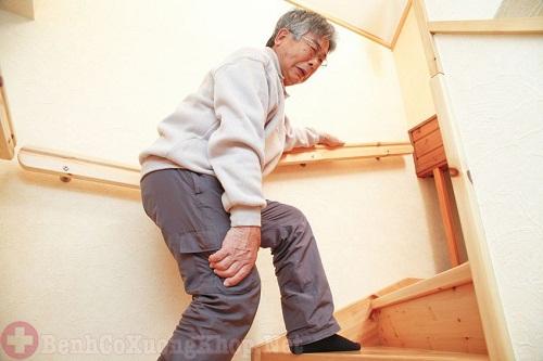 Bệnh viêm khớp do lão hóa xương khớp theo tuổi tác