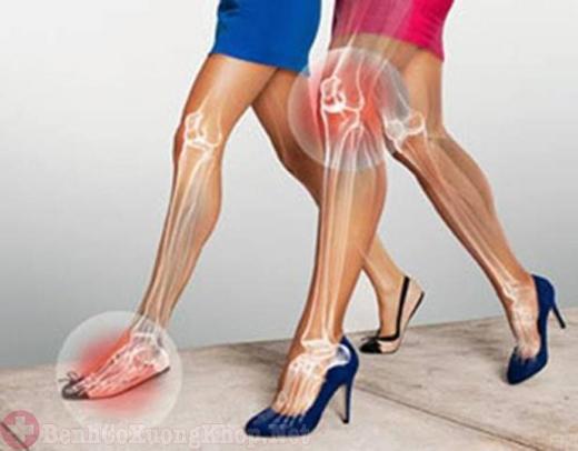 Đi giày cao gót gây viêm khớp