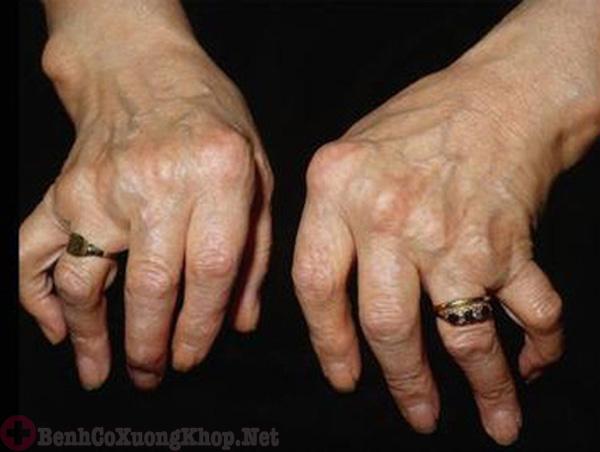 Không thể chữa khỏi bệnh viêm đa khớp dạng thấp hoàn toàn