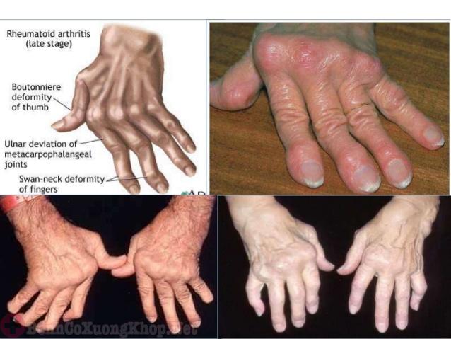 Bệnh viêm đa khớp dạng thấp gây ra những biến chứng nguy hiểm