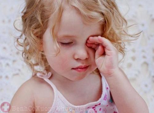 Viêm khớp dạng thấp gây biến chứng về mắt cho trẻ
