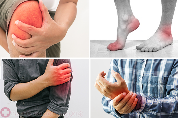 Bệnh viêm khớp có di truyền không?