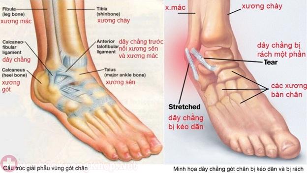 Viêm khớp mãn tính xảy ra do một số chấn thương