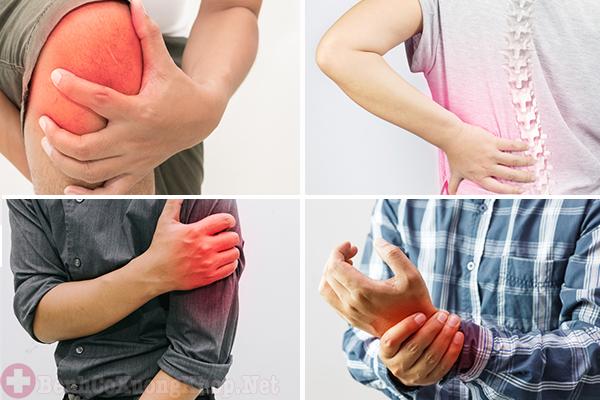 Viêm khớp mãn tính gây sưng đau ở các khớp