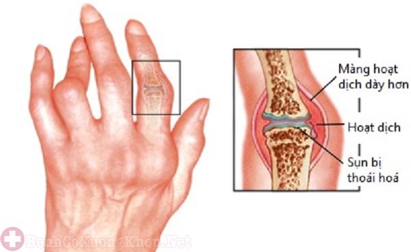 Bệnh gút gây đau nhức khớp ngón tay út