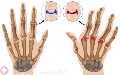 Bệnh phong thấp gây đau nhức khớp ngón tay út