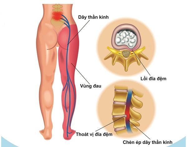 Thoát vị đĩa đệm gây tê chân là triệu chứng của căn bệnh nguy hiểm
