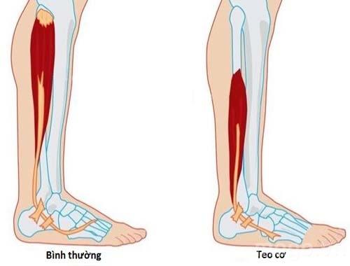 Bệnh nhân bị teo cơ do thoát vị đĩa đệm gây tê chân