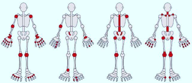 Viêm khớp dạng thấp cũng là một dạng của bệnh viêm khớp