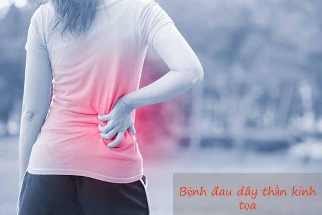 Bệnh đau dây thần kinh tọa là gì?