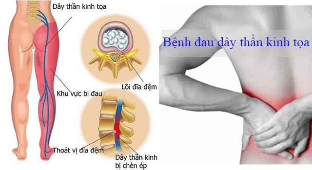 Bệnh đau dây thần kinh tọa