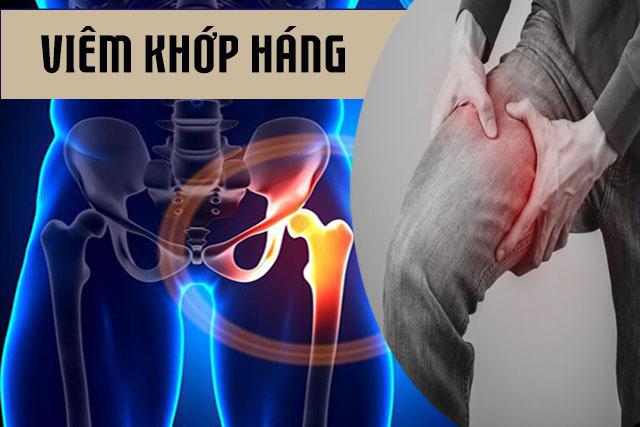 Tìm hiểu cụ thể về bệnh viêm khớp háng