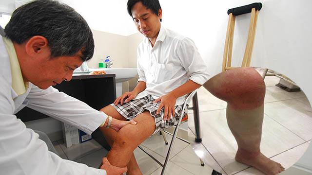 Chẩn đoán bệnh tràn dịch khớp gối