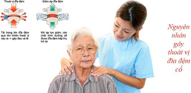 Nguyên nhân gây thoát vị đĩa đệm cột sống cổ