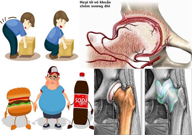 Nguyên nhân gây viêm khớp háng phổ biến nhất