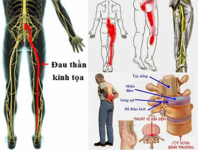 Nhận biết đau dây thần kinh tọa và thoát vị đĩa đệm