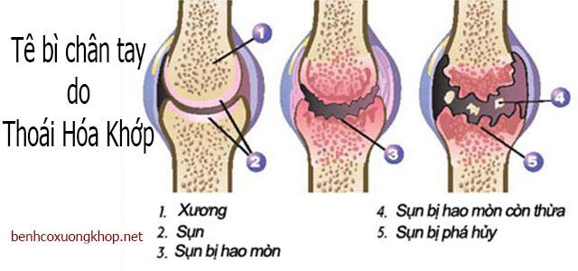 Tê bì chân tay do bệnh thoái hóa khớp
