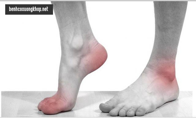 triệu chứng bệnh gút