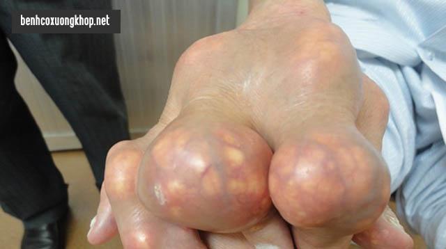 Nổi cục tophi là triệu chứng gout mãn tính