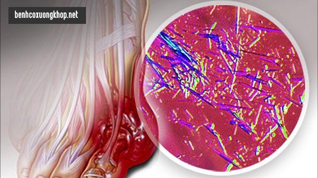 Axut uric kết tủa là biểu hiện của bệnh gút