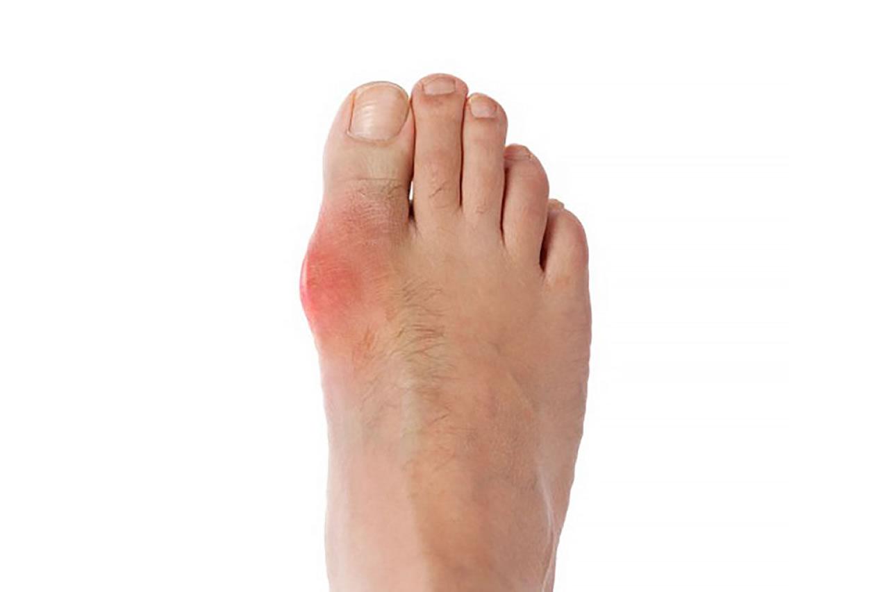 bệnh Gout gây ảnh hưởng xấu đến sức khỏe