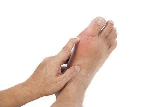 không nên chủ quan khi điều trị Gout