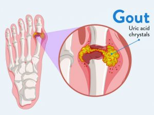 bệnh Gout có nên ăn măng không