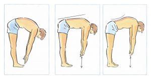 Áp dụng các nghiệm pháp chẩn đoán đau dây thần kinh tọa