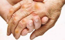Thoát khỏi cơn đau bệnh gout