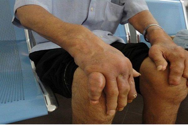 Bệnh gout gây sưng đau ảnh hưởng đến sức khỏe, cuộc sống người bệnh