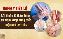 cách chữa trị viêm khớp dạng thấp hiệu quả